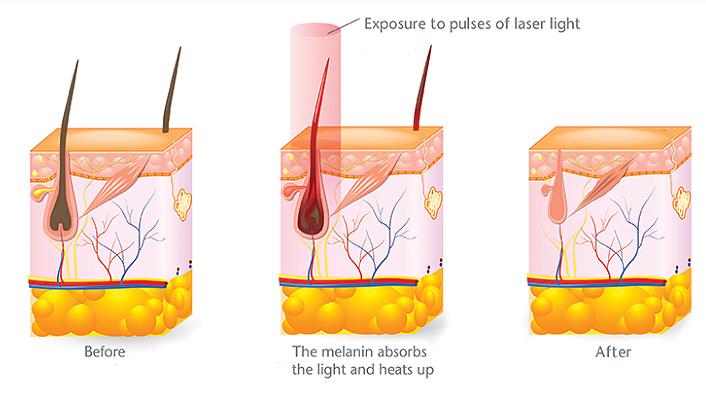 LightSheer Laserontharing